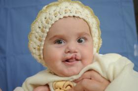 chechnya-baby-surgery.jpg