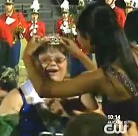 Down syndrome homecoming queen- CBS Video clip