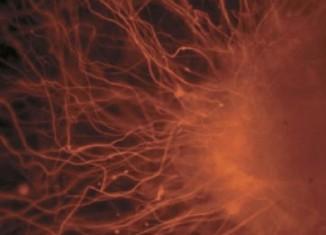 ebryonic stem cells -PublicLibraryofScience-CClic