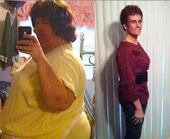 Anita Mills before-and-after photos