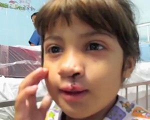 Operation Smile patient in Brazil -video screenshot