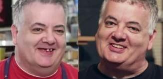 Dental before and after-David Bryant-DrBrunoSilva