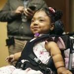 Wheelchair girl gets bones-Vanderbilt-Daniel Dubois