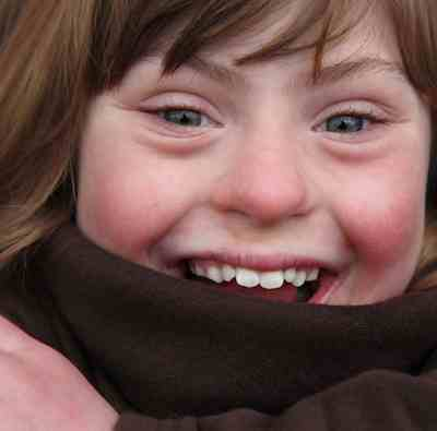 Down Syndrome girl Positive Exposures photo