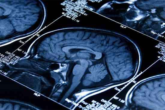 brain scans CU Tufts