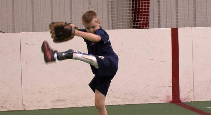 prosthetic-leg-on-boy-learning-softball-NBCvid