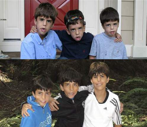 Lori-brothers-family-photos-before-after-surgery