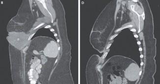 Melanoma-CT-Scan-NewEnglandJournalofMedicine