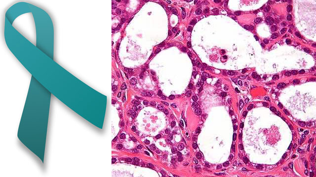 Ovarian_cancer_and_ribbon_CC_Nephron_CC_MesserWoland