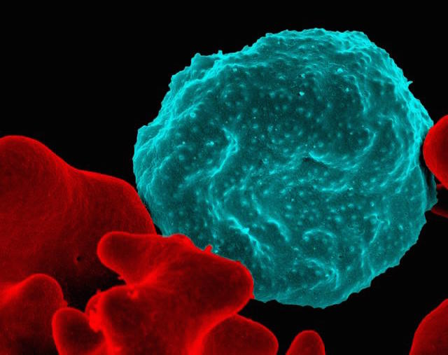 malaria infects red blood cell Publicdomain NIH NIAID