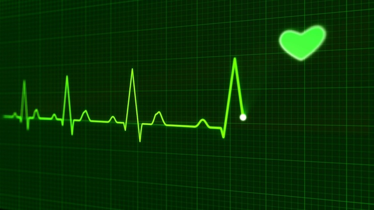 Heart monitor Public Domain pictures
