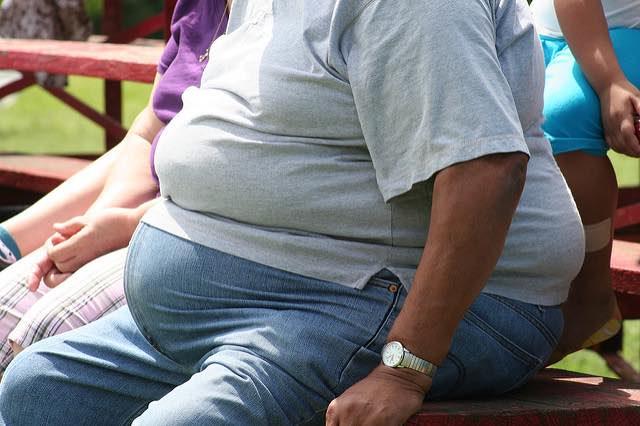 Obesity–CC TobyOtter