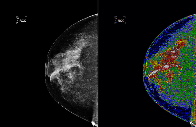 breast-cancer-cc-nasa-goddard-photo-and-video