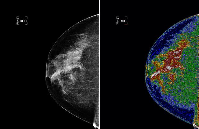 breast-cancer-cc-nasa-goddard-photo-and-video