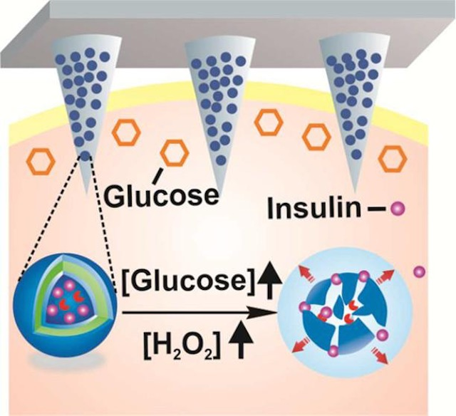 Painless Smart Patch Delivers Insulin To Diabetics