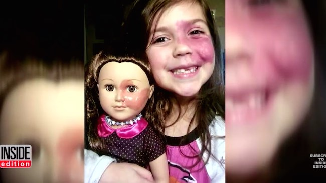 Birthmark girl and doll -YouTube