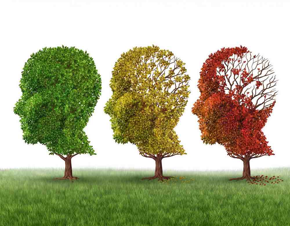 County research team discover new Alzheimer's drug