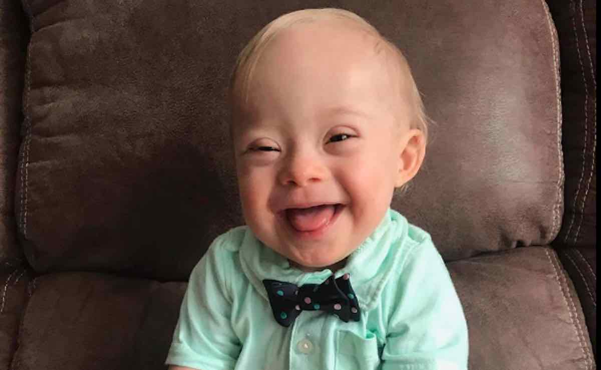 Meet The First Ever Baby With Down Syndrome To Win The