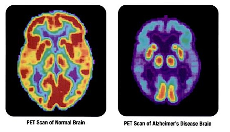 First-of-its-Kind Alzheimer's Drug is Pending FDA Approval After Patients Experienced Marked Cognitive Improvement