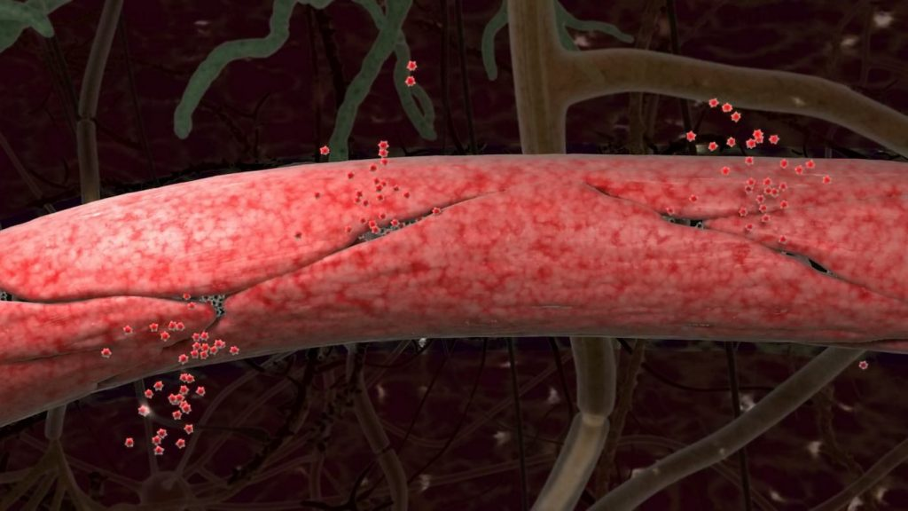 artist rendering blood vessel leaking