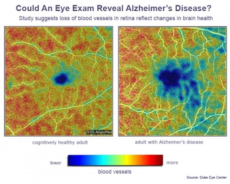Is There A Test For Alzheimers >> Routine Eye Test Can Detect Earliest Stages Of Alzheimer S In