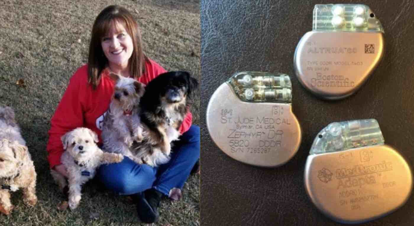 Years After Dog Dies, Nurse Starts Collecting Pacemakers From Human Patients to Give to Pets in Need