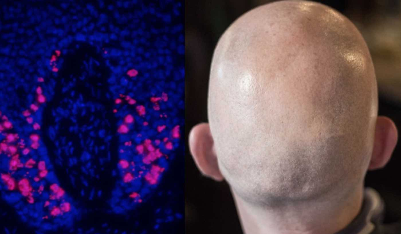 Scientists Discover New Strategy That May Protect Against Hair-Loss During Cancer Treatments