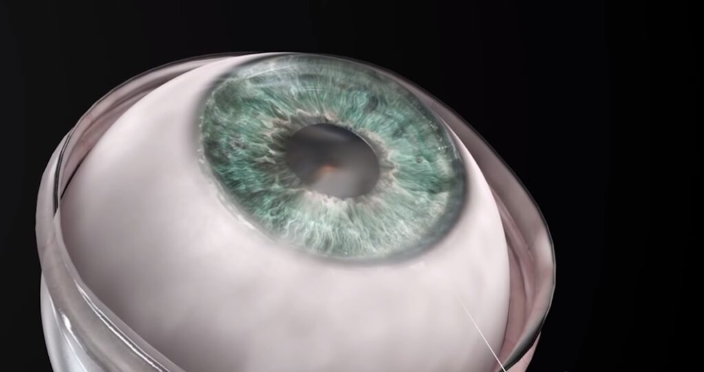 Man Regains Sight And Sees His Family Again After Becoming First Person Ever to Receive an Artificial Cornea